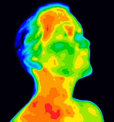 Thermography Thermal Scans Specific Body Regions